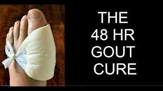 GOUT,PODAGRA,TOPHI,PSEUDOGOUT  | 48 HR CURE DISCOVERED FOR GOUT, PODAGRA,TOPHI &  PSEUDOGOUT