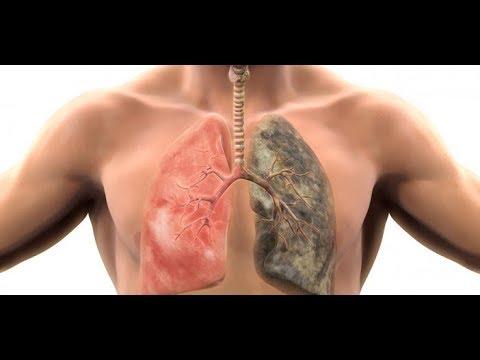 72 Saatte Akciğer Temizleme Yöntemi