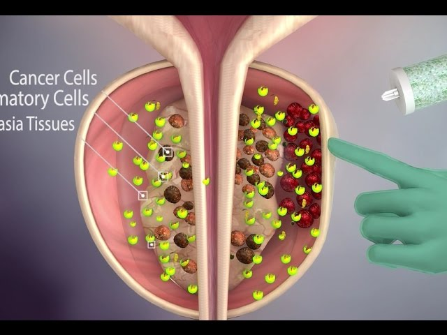 New prostate cancer treatment- Natural Prostate  Treatment - Natural - Effective- no side effect
