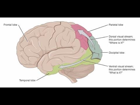 Cerebral Visual Impairment: A Brain-Based Visual Condition