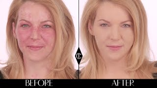 How to cover up birthmarks: Charlotte Tilbury Magic Foundation Makeup Tutorials