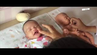 Lidah Bayi Setelah Operasi Tongue Tie & Lip Tie Begini Senam Terbaiknya