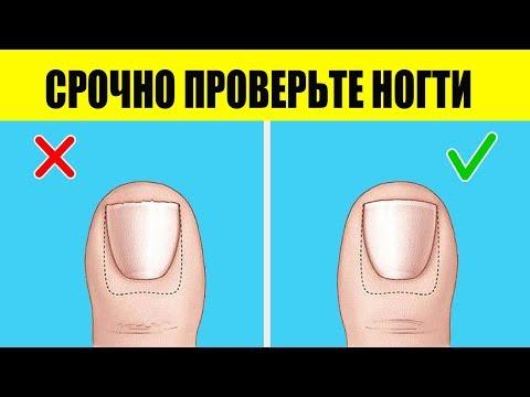 Диагноз по ногтям с примерами на фото. Часть 2