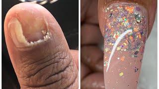 Zapętlaj Extreme nail transformation! | Acrylic nail tutorial | Libby Ortega