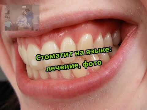 Стоматит на языке: лечение, фото