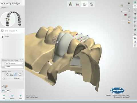 Intro to Dental CAD/CAM - Plan