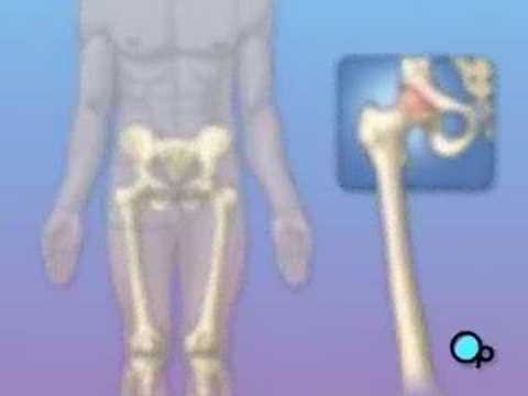Orthopedic: Hip Replacement Medical Patient Education HD