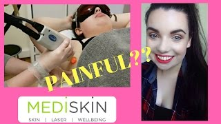 Update 3| Is Laser Hair Removal Painful? | CHASING RUBY CHAT