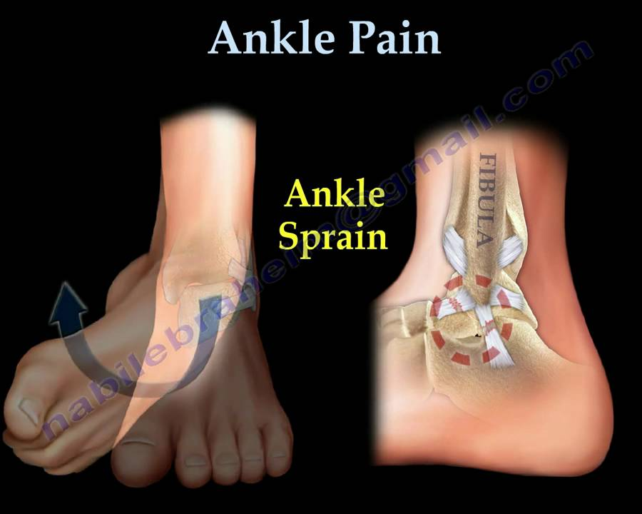 Ankle Pain Ankle Ligaments Sprain Everything You Need To Know