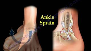 Ankle Pain, ankle ligaments sprain - Everything You Need To Know - Dr. Nabil Ebraheim