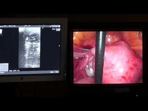 Poliklinika Harni - Nova tehnologija poboljšava simptome mioma