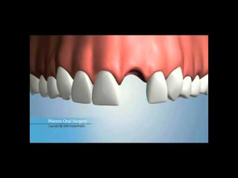 What is the best option to replace a tooth
