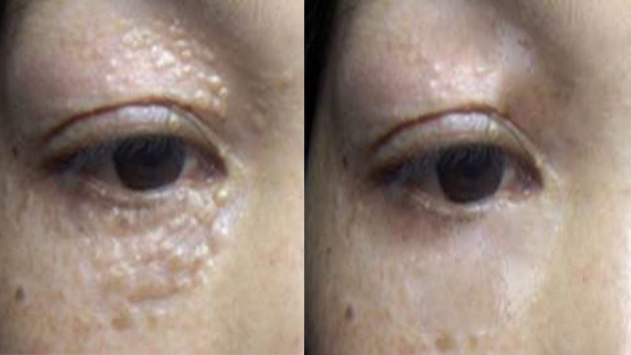Milia Around Eye Removal | Amtmakeup co
