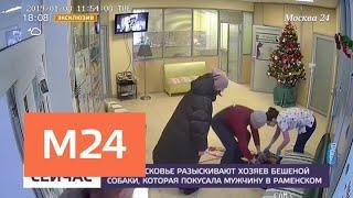 Мужчина, которого укусила бешеная собака, прокомментировал ситуацию - Москва 24