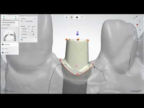 Dental Lab Life: Designing an Abutment in 3Shape