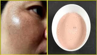 Mẹo hay xóa sạch nám đậm, nám lâu năm và đốm đen trên mặt sau 1 tuần [Tips for treating melasma]