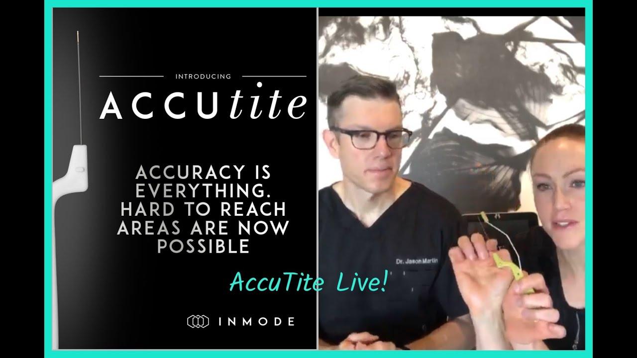 AccuTite in Denver - Fat Reduction & Skin Tightening   Jason