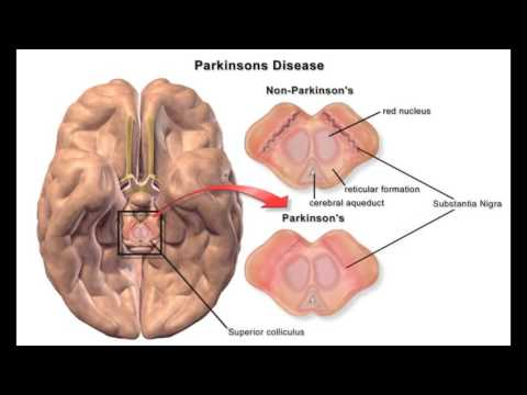 Genetic Disease Project- Parkinson's Disease