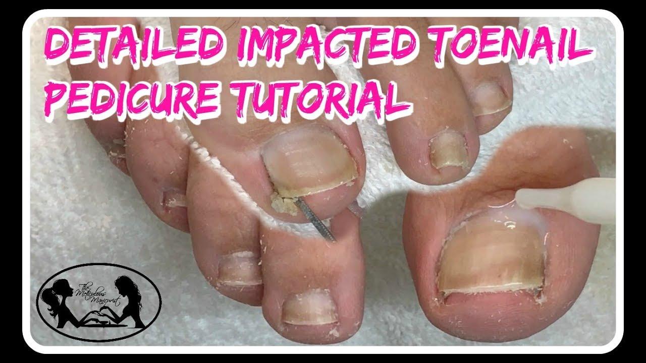 Satisfying Impacted Toenail Cleaning Pedicure Tutorial