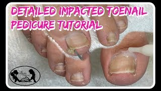 👣 Satisfying Impacted Toenail Cleaning Pedicure Tutorial Detailed Instruction  👣⭐