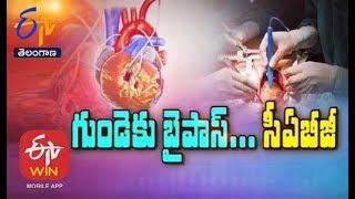 Coronary Artery Bypass Surgery   Sukhibhava   26th January 2020   Full Episode   ETV Telangana