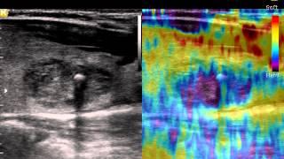 видео УЗИ щитовидной железы Киев
