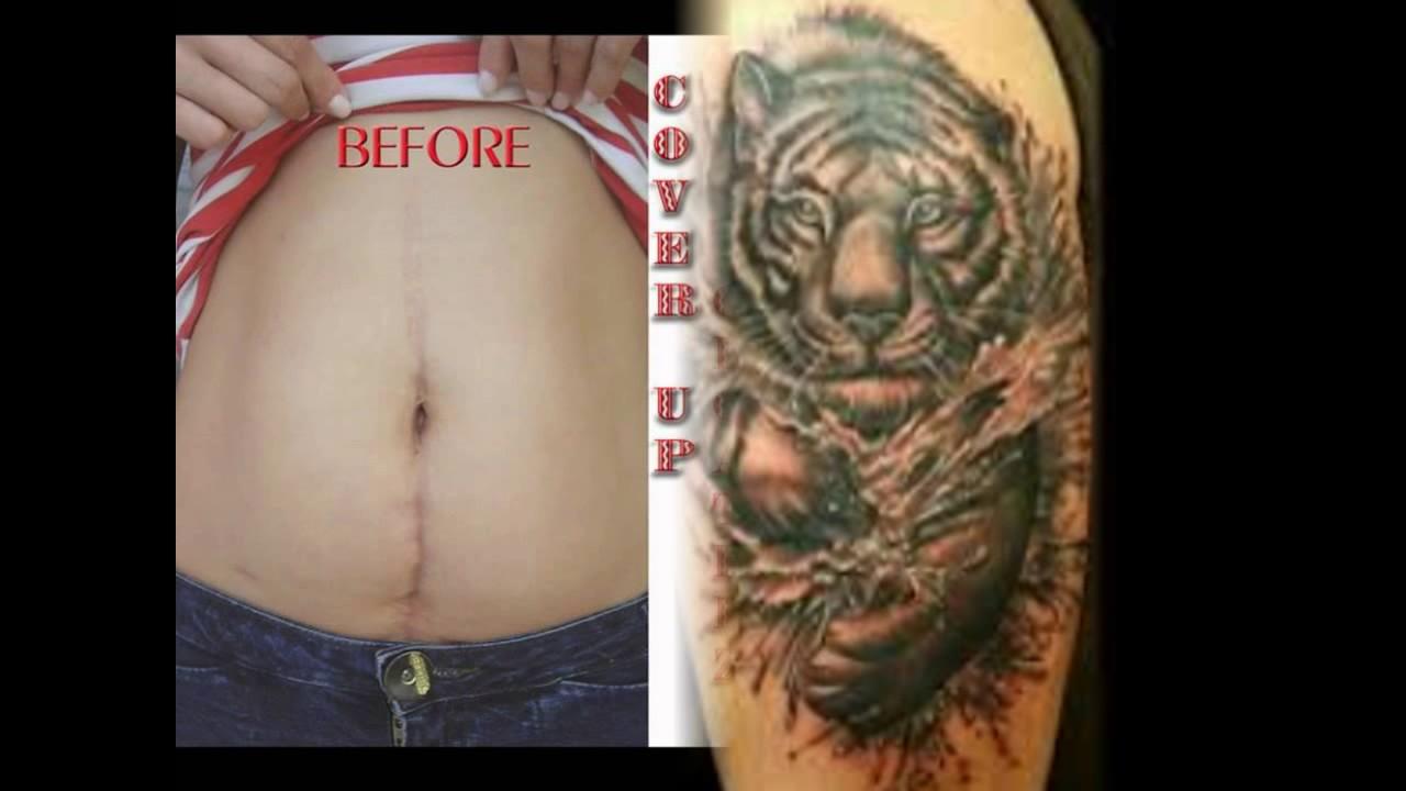 Arte Del Tatuaje Para Cubrir Cicatriz Youtube