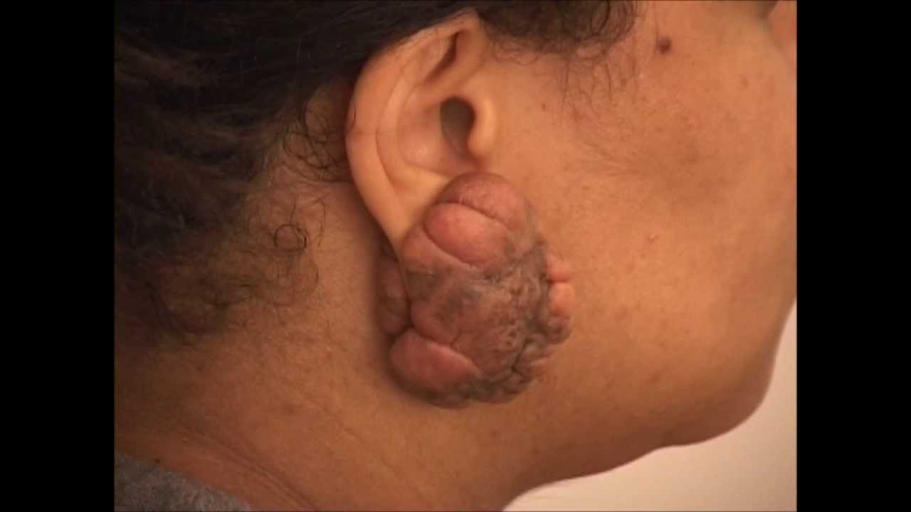 How to Remove Earlobe Keloids - NY Keloid Specialist - See ...Keloid Removal On Earlobe