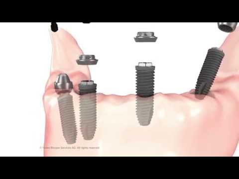 Immediate Dental Fixed Hybrid Bridge - Balle & Associates, Las Vegas, NV