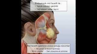 Yüz Estetiği ve Estetik Yüz Germe Ameliyatı Videosu, Op. Dr. Nazmi Bayçın
