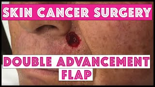 Skin Cancer Surgery Double Advancement Flap Upper Lip