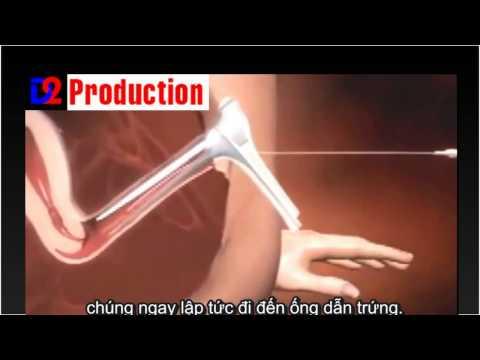 Chữa vô sinh  - Thụ tinh nhân tạo bơm tinh trùng IUI