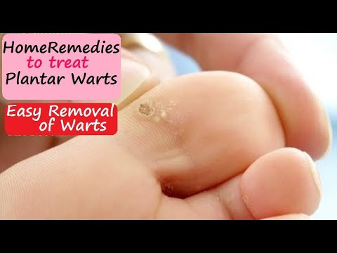 Treat Plantar Warts warts On Soles Of The Feet with 9 Natural Home Remedies To