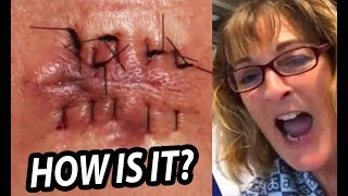 Download 70 Days Old Infected Cyst Su Verhoeven S Cysts Popping MP3