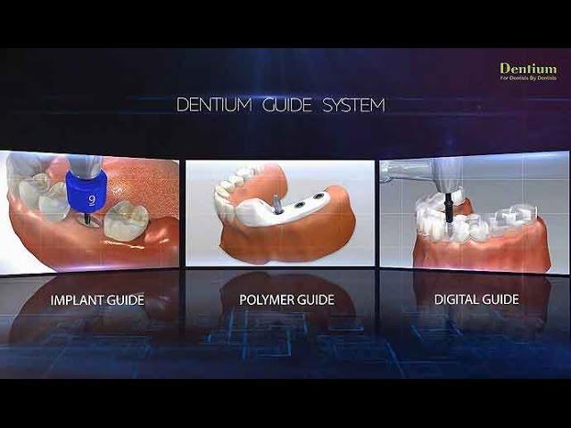 Dentium Guide System