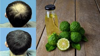 8 Foods That Help Promote Hair Growth Like Crazy