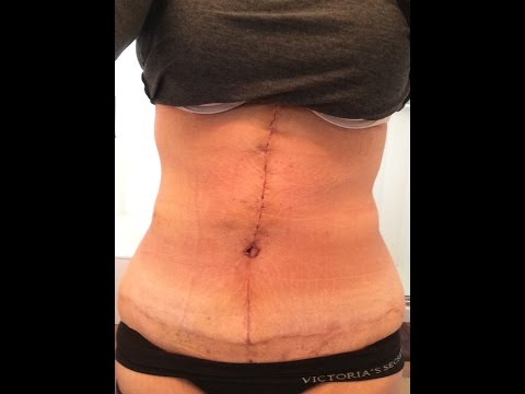 Abdominoplasty And Brazilian Body Lift Bbl With Quill