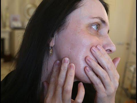 Клиентка, которой проткнули щеку в банке, никак не может добиться компенсации