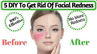 Natural Tips To Get Rid Of Facial Redness | How to Cure Red, Irritated Skin | AVNI