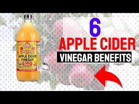 6-apple-cider-vinegar-benefits