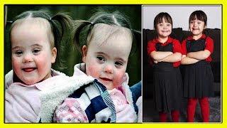Очаровательные Девочки-Близняшки Абигейл и Изобейл Парри с Синдромом Дауна-Один Случай на Миллион!