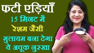 Cracked Heels Tips in Hindi - फटी एड़ियों की देखभाल कैसे करें   Cracked Heels Remedies by Sonia Goyal
