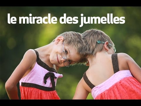 le miracle des jumelles : body bizarre from YouTube · Duration:  48 seconds