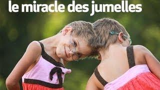 le miracle des jumelles : body bizarre