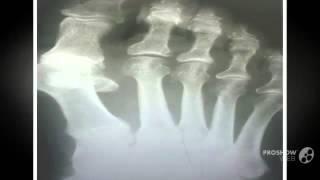 косточка на среднем пальце ноги      - Гелевый корректор большого пальца Valgus Pro(, 2014-09-07T18:58:02.000Z)