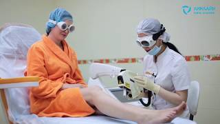 видео Деликатная процедура лазерная эпиляция: уход за кожей
