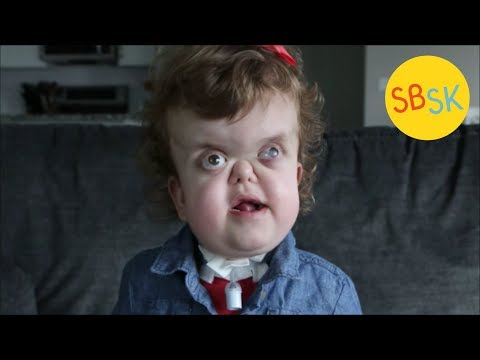 Kate's Great Life (Pfeiffer Syndrome)