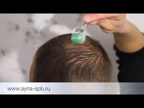 Мезороллер для волос - профилактика и лечение облысения (алопеции) у мужчин