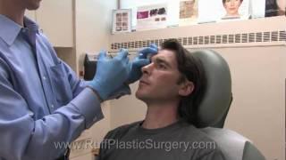 VLOG Botox and Juvederm Treatment