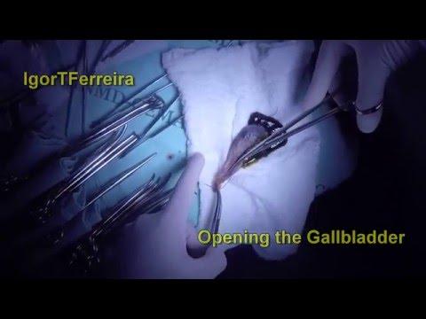 Gallbladder Polyps - Full HD - GoPro Footage